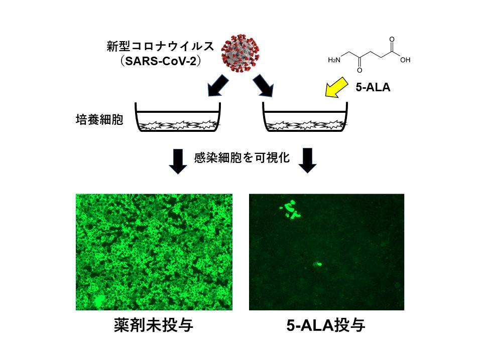 感染実験及び5-ALAの感染抑制効果の概要(下図:感染細胞の免疫染色像)