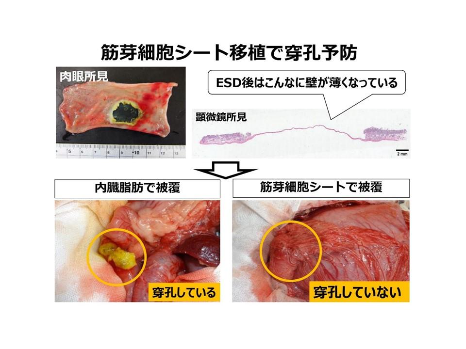 筋芽細胞シート移植